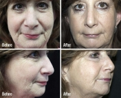 microneedling-before-after-1