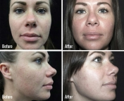 microneedling-before-after-2