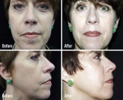 microneedling-before-after-3
