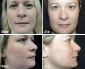 microneedling-before-after-4