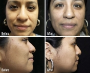 microneedling-before-after-5