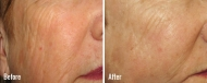 skin-rejuvenation-2