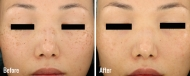 skin-rejuvenation-3