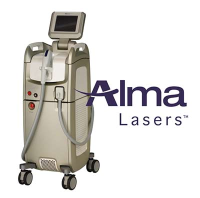Alma Lasers - hair removal