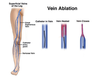 vein ablation